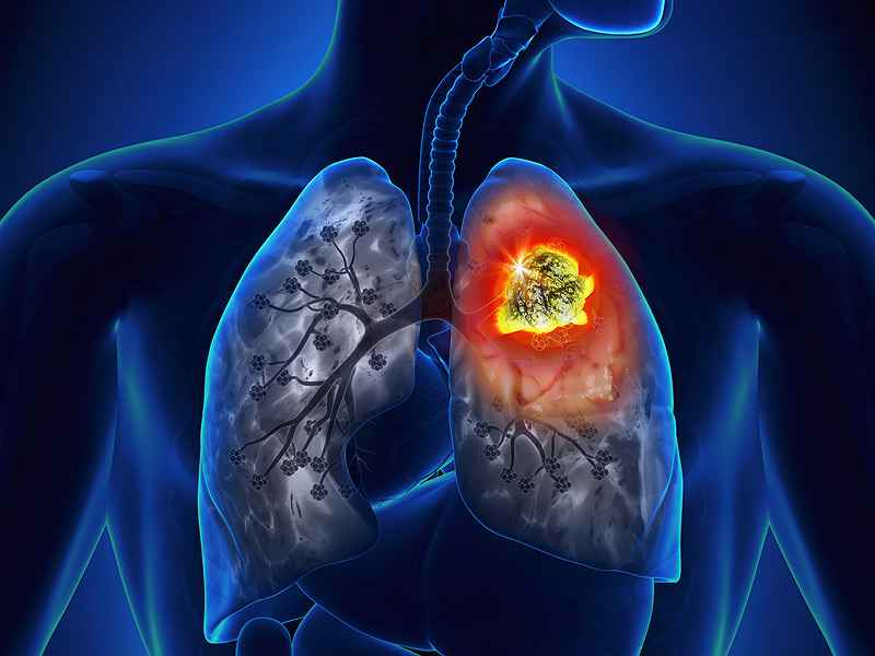 Vaccination With Embryonic Stem Cells Prevents Lung Cancer
