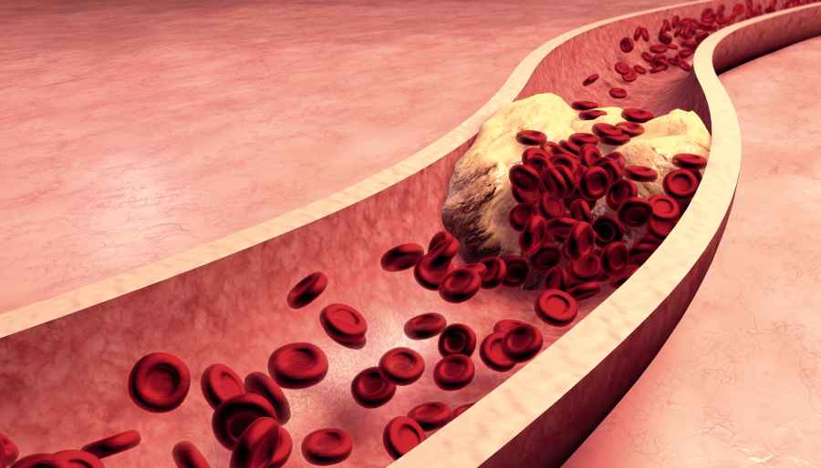 Embryonic Stem Cell Gene May Help Prevent Atherosclerosis